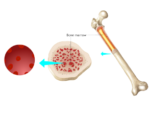 Learn more about myelodysplastic syndromes, which are neoplastic bone marrow disorders associated with abnormal cell growth. Our videos are helpful for oncological distance microlearning.