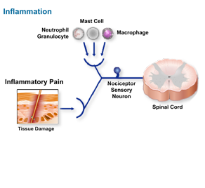 Learn the chemical mediators that are released from damaged cells as a result of tissue damage and the inflammatory mediators that activate and sensitize the pain pathways.