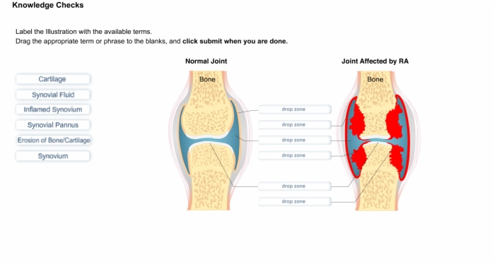 rheumatoid arthritis physiology Osteoarthritis vs rheumatoid arthritis treatments site navigation our mission is to provide a free, world-class education to anyone, anywhere.